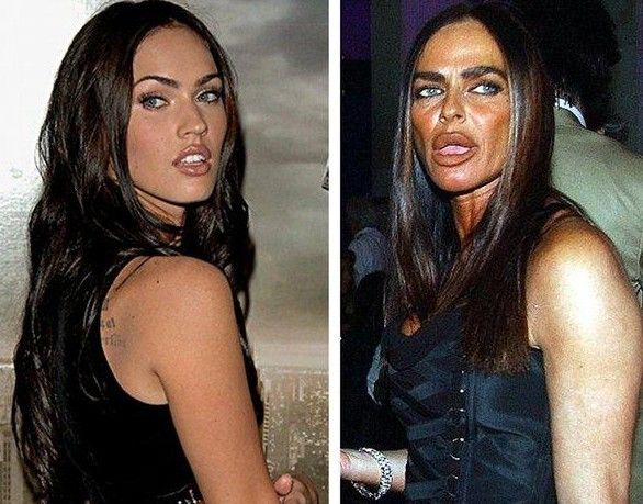 Michaela-Romanini-Plastic-Surgery-Before-and-After-Photos-Lip-Collagen-Injections-Botox-and-Lifts-wiki-bio-story-9