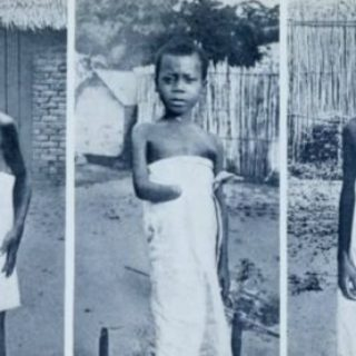Конго - снимки на осакатени деца